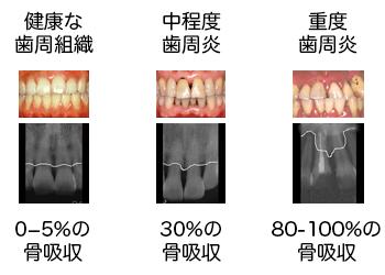 エックス線検査で評価される歯槽骨の喪失量
