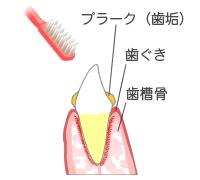 歯みがきの練習