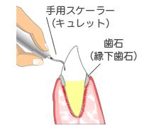 歯ぐきの下の歯石除去